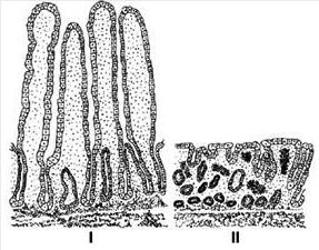 Vilosidade do intestino delgado na doença celíca